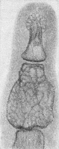 Рис. 11. Рентгенограмма IV пальца кисти (прямая проекция) с гигантоклеточной опухолью средней фаланги; выражено резкое вздутие истонченного кортикального слоя, укорочение и ячеистая структура фаланги.