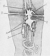 Рис. 3. Схематическое изображение нагноившейся огнестрельной раны бедра: 1 — свободный костный осколок; 2 — гнойная полость; 3 — гнойные затеки; 4 — секвестры; 5 — раневой канал; 6 — образование костной ткани.