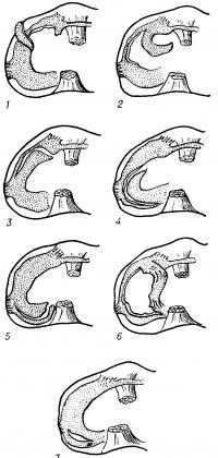 Рис. 4. Схематическое изображение некоторых видов повреждения менисков. Паракапсулярные разрывы: 1 — переднего рога, 2, 3 — переднего рога и тела, 4 — тела мениска, 5 — заднего рога и тела мениска; трансхондральные разрывы: 6 — в виде ручки лейки, 7 — разрыв заднего рога.
