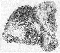 Рис. 41. Макропрепарат легкого мертворожденного; врожденная центральная киста указана стрелками.
