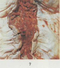 Рис. 7. Макропрепарат твердой мозговой оболочки при тромбозе верхнего сагиттального синуса (синус вскрыт): стрелкой указан красный тромб, обтурирующий просвет синуса (дано с увеличением).