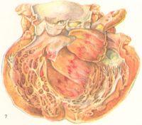 Рис. 7. Миокардит при дифтерии (сердце в разрезе): в центре рисунка видны дистрофически-некробиотические изменения (желтоватого цвета) и пятнистые кровоизлияния.