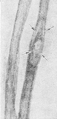 Рис. 14. Рентгенограмма костей предплечья больного хроническим остеомиелитом: виден большой секвестр, отграниченный от живой кости светлой полоской грануляционной ткани (указано стрелками).