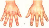рис. 2. Некоторые клинические проявления дерматомиозита — симметричные эритематозные высыпания над межфаланговыми суставами, красная кайма у ногтя;