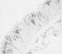 Рис. 1. Микропрепарат слизистой оболочки толстой кишки при дизентерийном катаральном колите: выражены очаговые поражения и лейкоцитарная инфильтрация (указано стрелками); X 40.