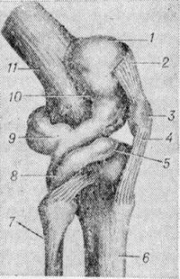 Рис. 1. Схематическое изображение основных заворотов синовиальной оболочки коленного сустава (для выявления объема заворотов суставной сумки она наполнена жидкостью): 1 — верхний передний заворот; 2 — сухожилие четырехглавой мышцы бедра; 3 — надколенник; 4 — связка надколенника; 5 — передний нижний заворот; 6 — большеберцовая кость; 7 — малоберцовая кость; 8 — задний нижний заворот; 9 — задний верхний заворот; 10 —боковой верхний заворот; 11 — бедренная кость.