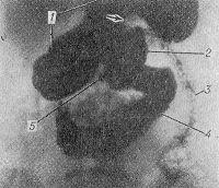 Рис. 3. Рентгенограмма желудка и кишечника при хроническом порочном круге: задержка бария в желудке (1); перегиб желудка (указан стрелкой) в связи с перигастритом; незначительное поступление контрастной массы в отводящую петлю тощей кишки (3); короткая приводящая петля (2) и двенадцатиперстная кишка (4) расширены и переполнены барием; пептическая язва анастомоза (5).