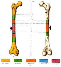 Схема распределения зон механического напряжения, возникающего в костной ткани бедра при разрушающем воздействии пули в зависимости от скорости ее полета