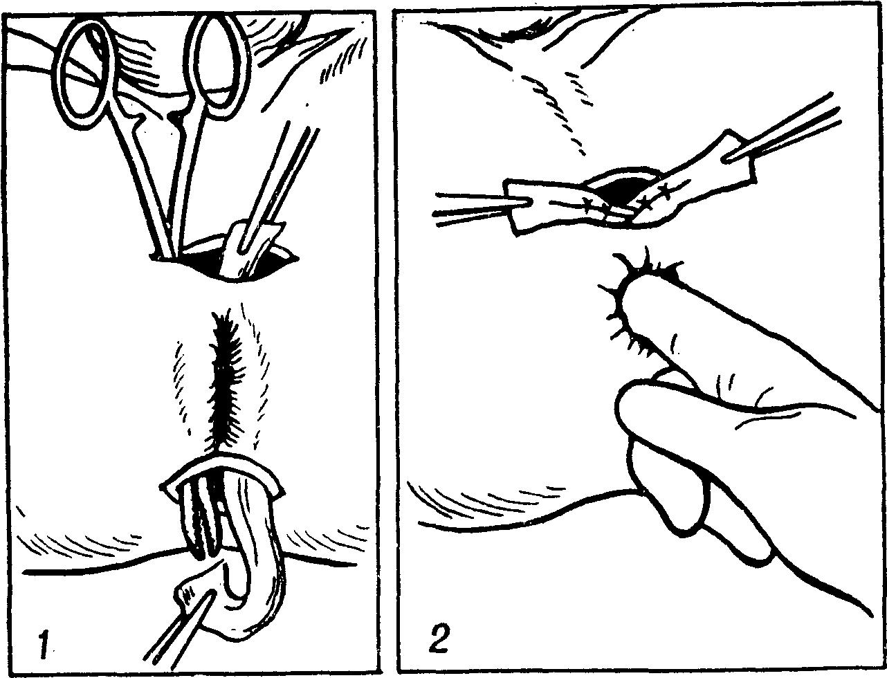 Разрыв анального отверстие 5 фотография