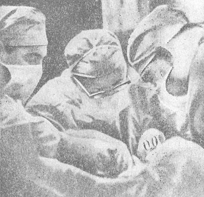 Академик Б. В. Петровский с ассистентами производит операцию пересадки почки.