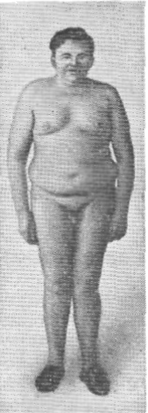 Синдром Пехкранца — Бабинского — Фрелиха фото