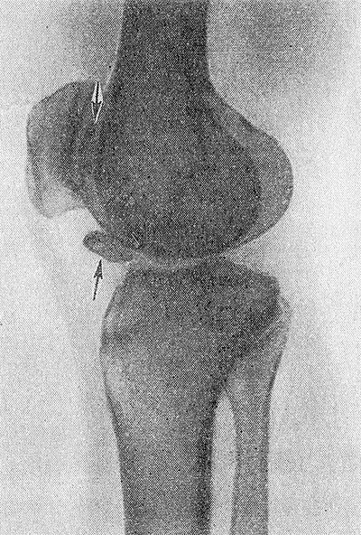 Внутрисуставная мышь коленного сустава операция