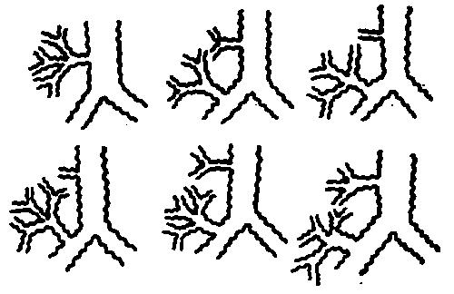 бронха (схема).