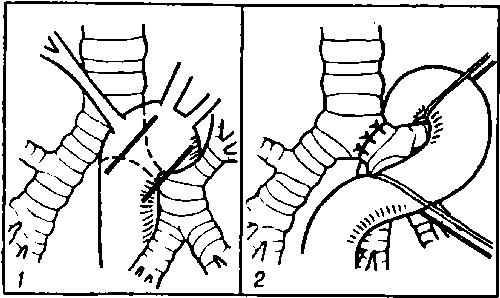стеноза главного бронха (