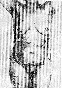 Рис. 1. Больная нейрофиброматозом: на коже туловища и конечностей видны множественные опухолевые узлы и пигментные пятна.