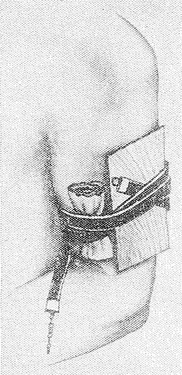 Рис. 5. Наложение резинового ленточного жгута с фанерной шиной по методу Герша — Жорова (для иллюстративности повязка сдвинута).