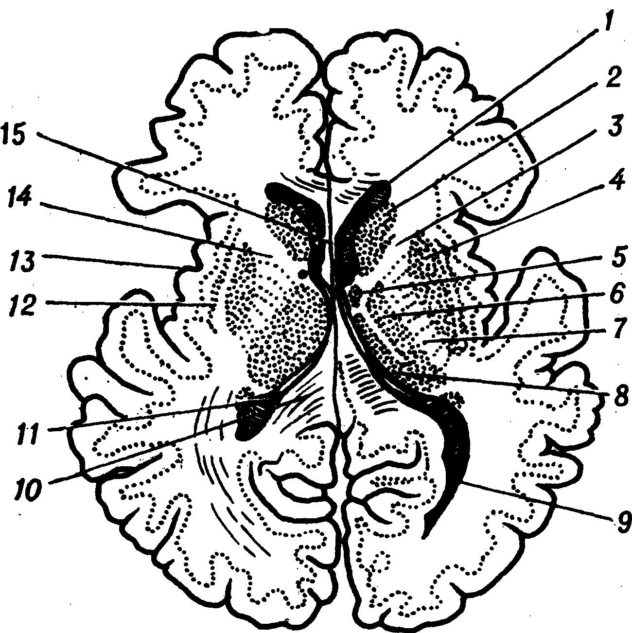 Спонгиобластома фото