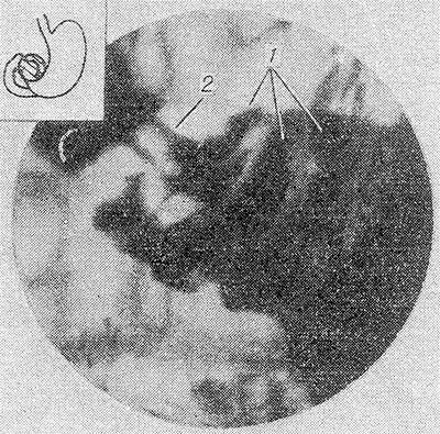 Диета при антральном эрозивном гастрите
