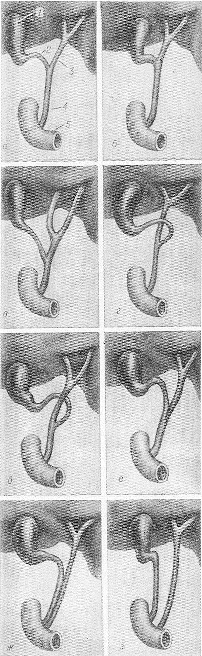 Рак внепеченочных желчных путей фото