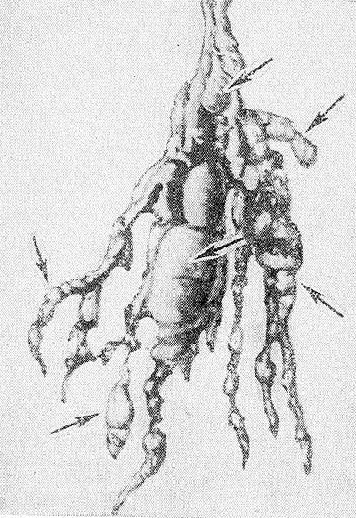 Рис. 2. Макропрепарат плексиформиой невромы при нейрофиброматозе: множественные опухолевые узлы (отдельные из них указаны стрелками) крупного нерва и его разветвлений.