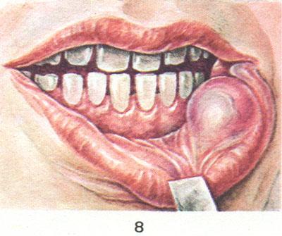 Опухоль нижней губы что это