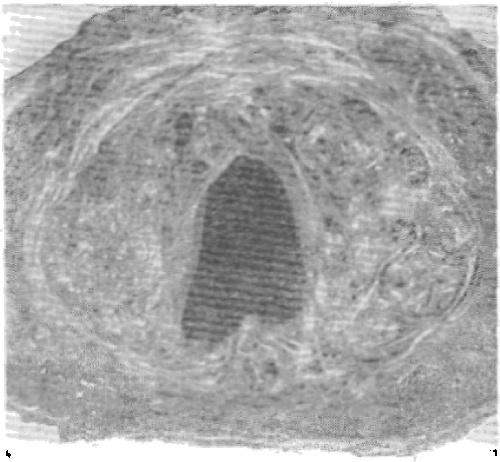 Рис. 2. Двойственное строение предстательной железы у мужчины старше 70 лет.