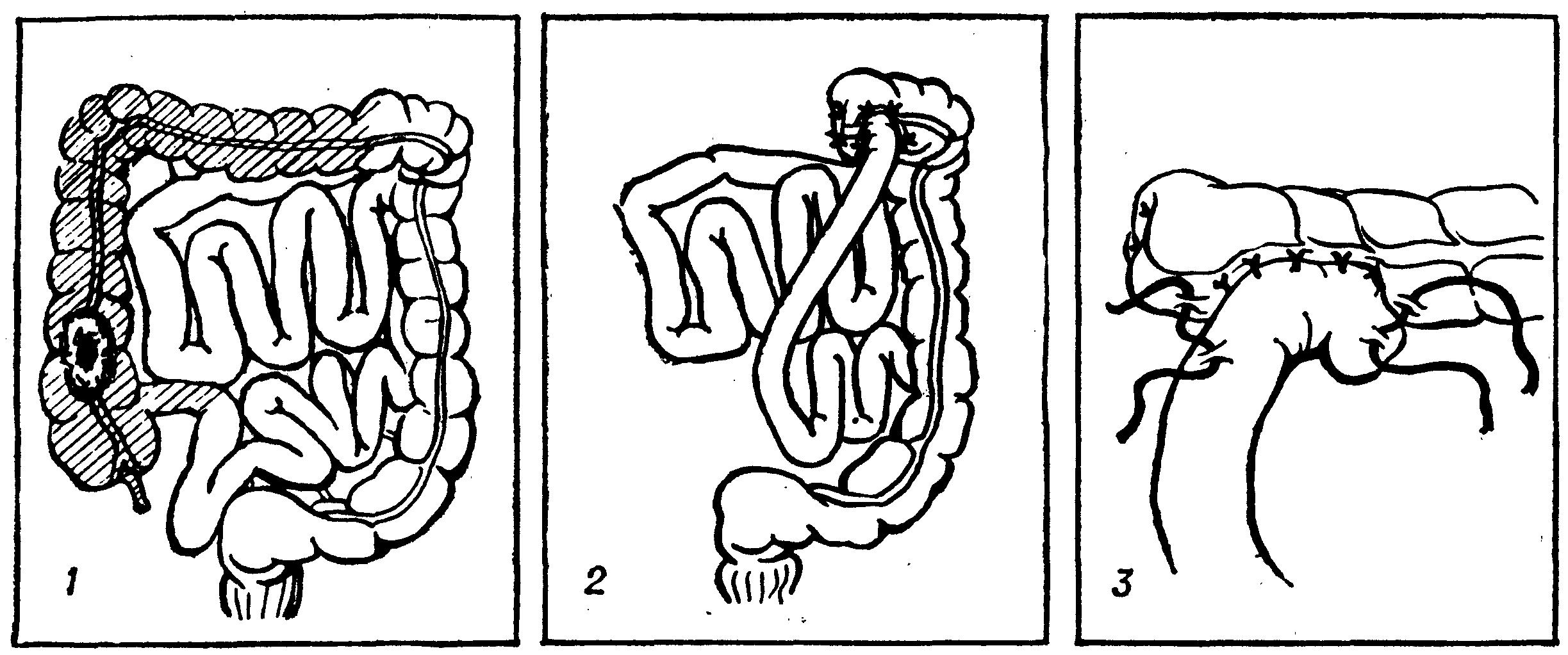 Цекостомия фото