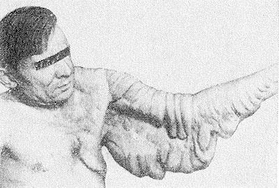 Рис. 3. Больной слоновоподобной формой нейрофиброматоза: разрастания нейрофиброматозной ткани в области левой верхней конечности с распространением в кожу и подкожную клетчатку груди.