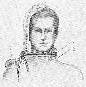 Рис. 6. Наложение жгута при повреждении сосудов шеи слева: 1 — жгут; 2 — мягкая подкладка под жгутом; 3 — сложенная вдвое лестничная шина.