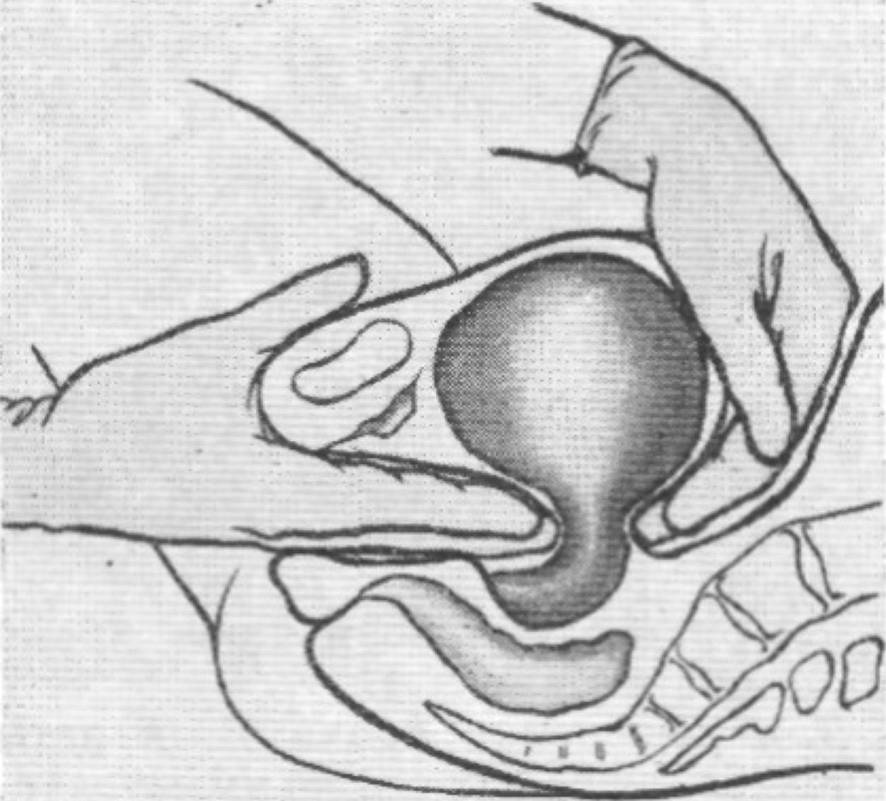 Сношение беременной на фото 26 фотография