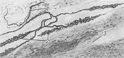Анатомическое строение сухожилия и связок