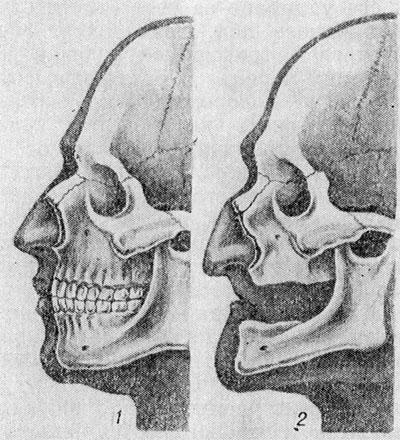 Image result for Возрастные изменения черепа