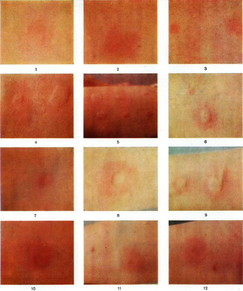 Скарификационная проба на аллергию